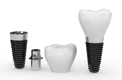 Sycamore House Dental Practice, Dental Implant Special interest